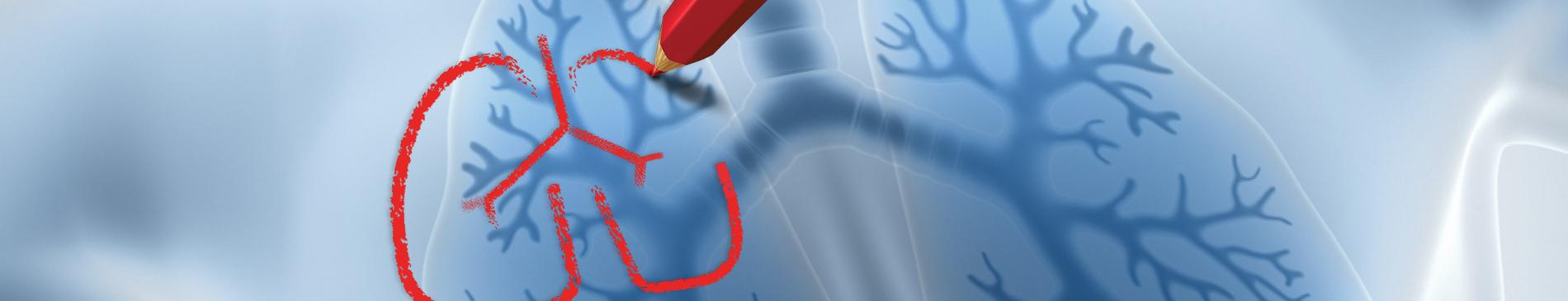 Riabilitazione pneumologica